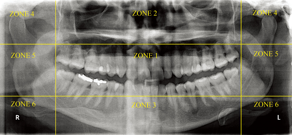 Image quality assessment in panoramic dental radiography: a ...