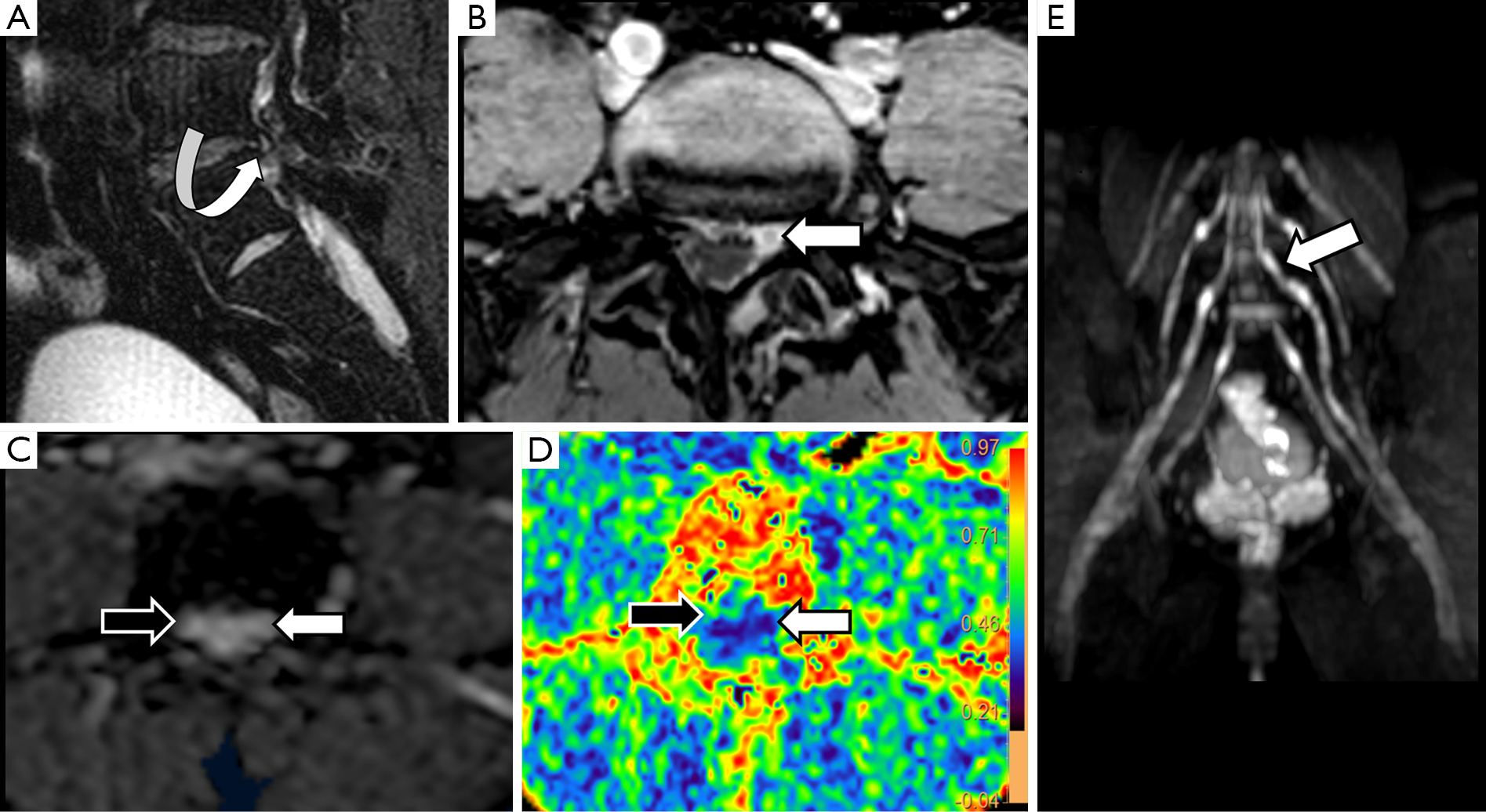 Quantitative magnetic resonance (MR) neurography for evaluation of