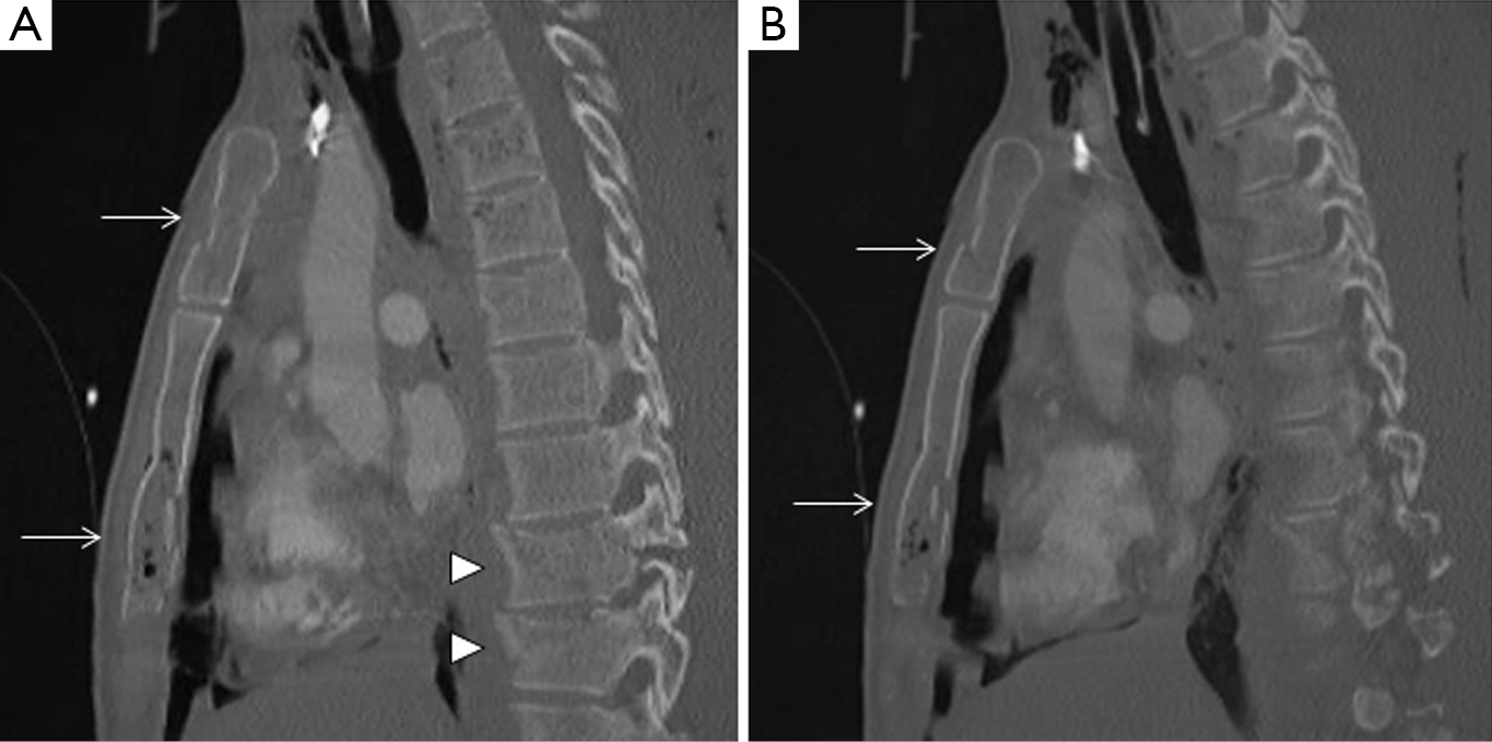 Abscessation Osteomyelitis And Fracture Of The Sternum In: Thoracic Wall Trauma—misdiagnosed Lesions On Radiographs