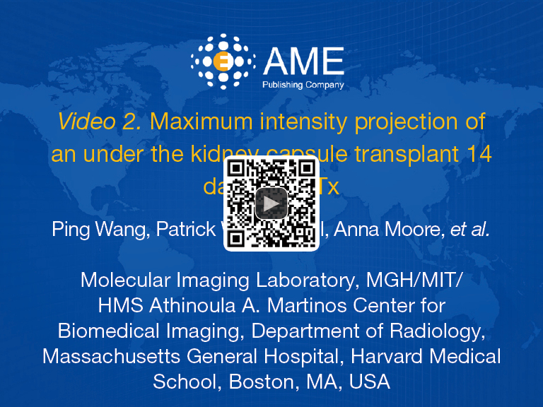 Magnetic particle imaging of islet transplantation in the