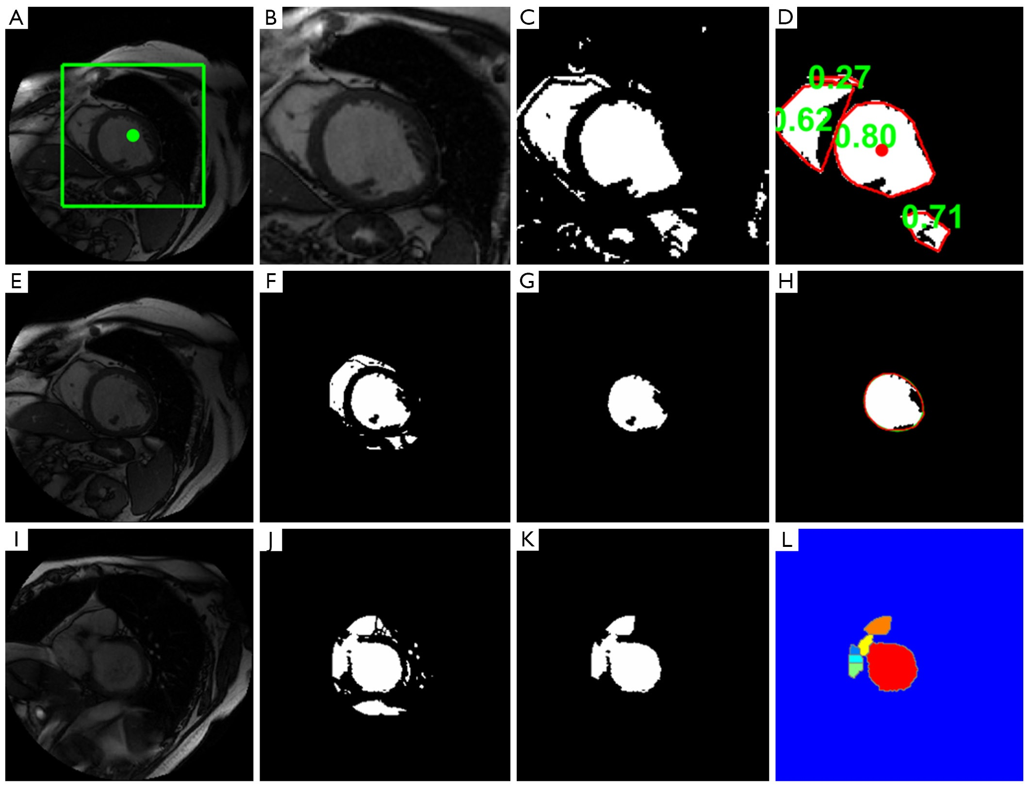 Automatic functional analysis of left ventricle in cardiac cine MRI