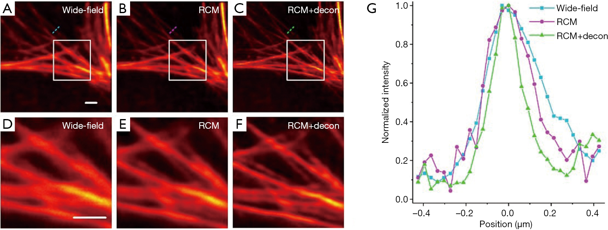 Multicolor re-scan super-resolution imaging of live cells